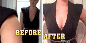 goodwin-breast-enhancement-abc-news-saline-1